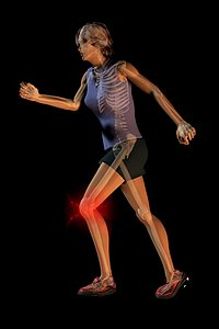 Woman experiencing knee pain while running. Visible skeleton.